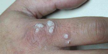 Infecciones cutáneas: moluscos contagiosos, verrugas, micosis