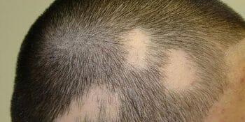 Tricología: Alopecia Androgenética y otras alopecias
