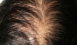 Alopecia Fernandez Crehuet