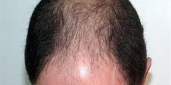Clínica Alopecia Cordoba